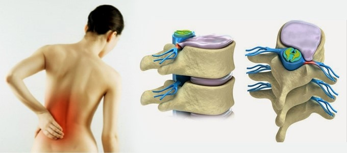 Hình ảnh thoát vị đĩa đệm vùng thắt lưng