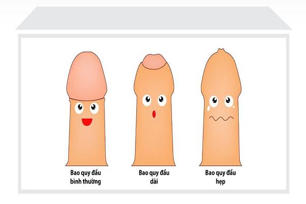 Những điều bạn nên biết về cắt bao quy đầu
