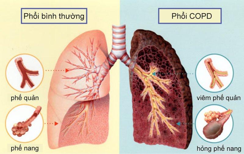 Cách điều trị bệnh lao phổi
