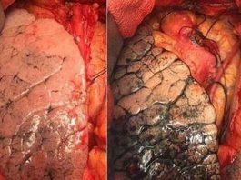 Những bệnh về phổi nguy hiểm bạn cần biết
